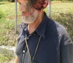 Възрастен мъж с тумор на лицето се нуждае от помощ